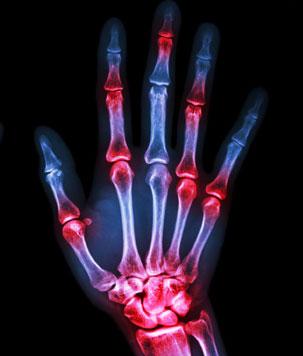 rthritis & Osteoporosis Center of Northern Virginia